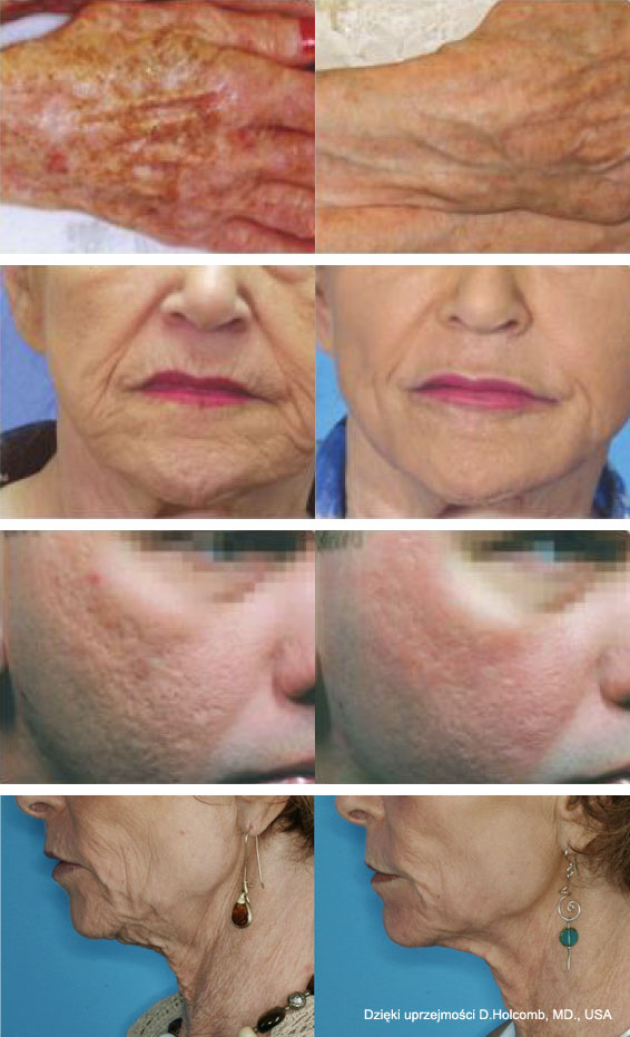 Efekty terapii laserem