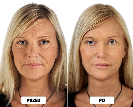 Efekt przed i po zabiegu Restylane