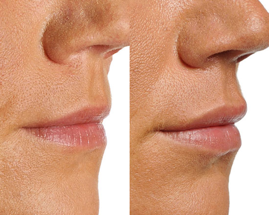 Efekt przed-po zabiegu z wypełniaczem ust