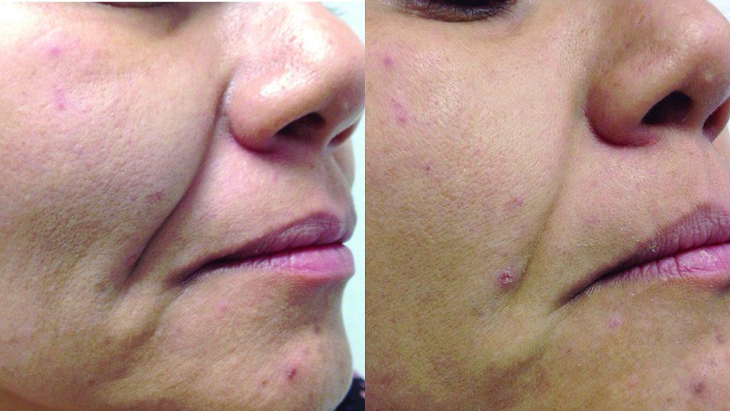 Endolifting 4d - laserowy lifting twarzy - zdjęcie przed i po zabiegu - Beauty Group - Artplastica